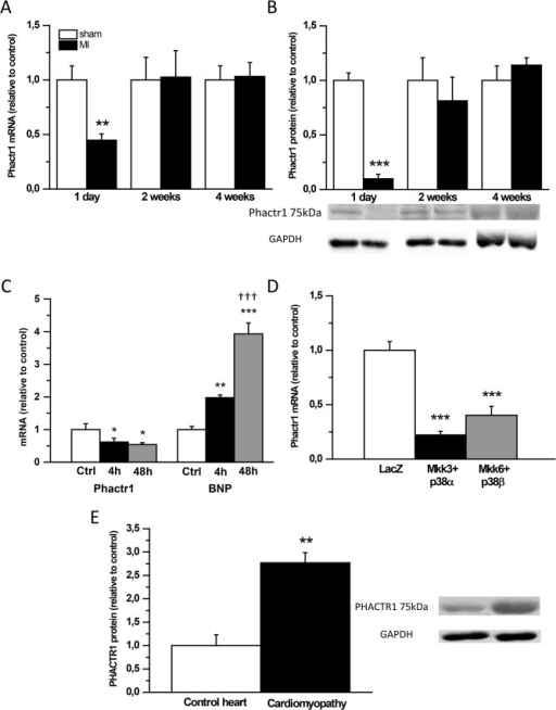 Phactr1 mRNA and protein levels are reduced 1 day after experimental myocardial infarction (MI) in rats.A) Phactr1 mRNA levels measured by RT-PCR and B) Phactr1 total protein levels analyzed by Western blot from the LV tissue samples 1 day, 2 weeks and 4 weeks after MI (n = 6–16). Open bars represent sham and solid bars MI **P<0.01, ***P<0.001 versus sham (Student's t-test). C) Phactr1 and BNP mRNA levels in mechanically stretched neonatal ventricular myocytes in vitro. D) Phactr1 mRNA levels in response to p38 MAPK overexpression in neonatal ventricular myocytes in vitro (n = 5–9).*P<0.05, **P<0.01, ***P<0.001 versus control (Ctrl) or LacZ; ƗƗƗP<0.001 versus group at 4h (one-way ANOVA followed by least significance difference post hoc test). E) PHACTR1 total protein levels assessed by Western blot analyses from human heart samples (n = 2–4). **P<0.01 versus control hearts (Student's t-test). The results are expressed as mean±SEM. Representative Western blots are shown.