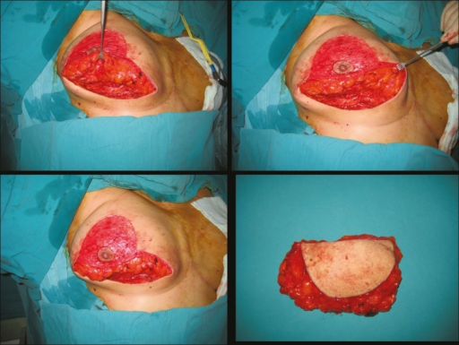 Intraoperative views of surgical procedure