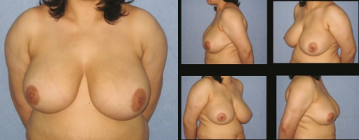Patient-17; 35-year-old women preoperative breast views
