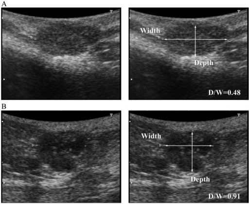 Ultrasonography images of the benign (A; adenoma) and malignant (B; carcinoma) mammarytumors and the measurement of D/W. The D/W of a mass is the division of depth bytransverse diameter of the mass.