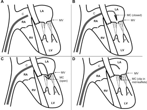 Schematic of MitraClip device insertion.Notes: (A) Device inserted to right atrium, ready to cross atrial septum. (B) Septum traversed, and device curving inferiorly to pass through mitral orifice. (C) MitraClip in place to arrest leaflets. (D) Successful MitraClip capture of leaflets (clip shown closed so as to reapproximate mid-leaflets).Abbreviations: C, MitraClip catheter; MC; MitraClip clip; LA, left atrium; LV, left ventricle; RA, right atrium; RV, right ventricle; MV, mitral valve; P, papillary muscles.