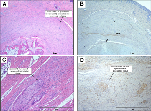 Photomicrographs of histopathological features in sections of pig tail stump 8 weeks after docking. (A) Fully healed superficially with no external signs of tissue trauma associated with amputation. A granulation tissue 'cap' is evident in the dermis. HE. (B) Granulation tissue cap (*) covering docked end of coccygeal bone (arrowhead), with peripheral nerve (**) curving around the docked end (S100 expression). IHC. (C) Transition between transected nerve and granulation tissue. HE. (D) Neuroma and multiple axonal sprouts within the granulation tissue (S100 expression). IHC.