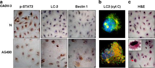 Evaluation of STAT3 activation, autophagic activities and apoptosis of CAOV-3 cells without (N) and with AG490 treatment (AG490). (a) Immunocytochemical staining for p-STAT3, LC-3 and Beclin 1; (b) Confocal images of double LC-3 and cytochrome C IF labeling; (c) H/E morphological staining performed on the IF stained coverslips for confocal examination. Arrow indicates the cell shown in the inset with higher magnification.