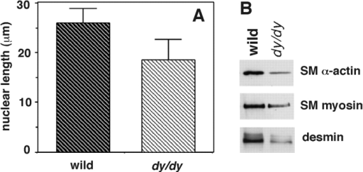 SM cell size in intraparenchymal bronchi of dy/dy mice and controls. (A) Histogram showing maximal nuclear diameter as an indicator of cell size in hematoxylin eosin-stained histological sections of lungs (cell boundaries are not seen in organs). Dy/dy mice showed shorter nuclei compared with controls (P < 0.05). (B) Immunoblots demonstrating lower levels of SM proteins in dy/dy lungs compared with controls.