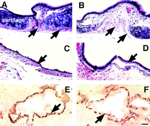 SM in trachea and bronchi of dy/dy mice and controls. (A–D) Hematoxylin eosin-stained histological sections of trachea and main bronchi. (A) Normal tracheal SM (arrows) surrounding tracheal cartilage; compare to the severely underdeveloped tracheal SM in dy/dy mouse, shown in B (arrows). (C) SM in normal main bronchus (arrow) is significantly thicker than in dy/dy mouse (D). (E and F) intraparenchymal bronchial SM immunostained with antibodies to SM α actin (brown). (E) Normal SM (arrow) surrounding medium sized bronchi; compare to thinner, more discontinuous bronchial muscle in dy/dy mice, shown in F (arrow). Bars: (A–D) 20 μm; (E and F) 60 μm.