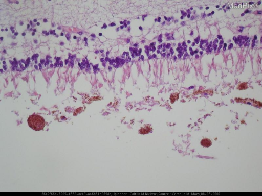 Histology of a patient with Spino-Cerebellar Ataxia.