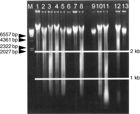 Estimating the quality of the extracted genomic DNA. Genomic DNA was electrophoresed on a 0.8% agarose gel. The quality of the extracted genomic DNA was classified into three categories. Genomic DNA samples 1, 2, 4, 6, 7, 9, 12, and 13 were classified as exhibiting grade 1 degradation. Genomic DNA samples 3, 5, 8, and 10 were classified as exhibiting grade 2 degradation. Genomic DNA sample 11 was classified as exhibiting grade 3 degradation. M shows the λDNA/HindIII marker.