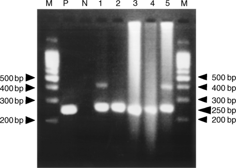 Detection of PCR products using electrophoresis. PCR products were electrophoresed on a 3% agarose gel. Lane 1, PCR products using genomic DNA with grade 1 degradation as a template; lane 2, PCR products using genomic DNA with grade 2 degradation as a template; lanes 3, 4, and 5, PCR products using genomic DNA with grade 3 degradation as a template. M shows the 100-bp DNA ladder marker. P shows the positive control. N shows the negative control.