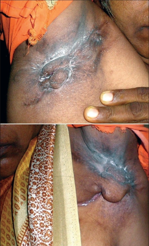 Multiple scars (bridge scars) in both axillae with matted and non tender lymph nodes and pedunculated, firm nodules associated with intertrigo