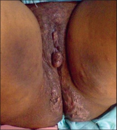 Swelling of the external genitalia, with pedunculated polypoid growth 3 cm × 3 cm, extending from the left labium minus