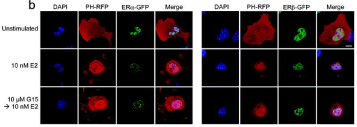 G15 antagonism of PI3K activation by GPR30. The activity of G15 was evaluated using COS7 cells transfected with Akt-PH-mRFP1 and either GPR30-GFP (a), ERα-GFP or ERβ-GFP (b) or SKBr3 cells transfected with Akt-PH-mRFP1 (c). 17β-estradiol, G-1 and G15 were used at the indicated concentrations. The white bar in upper panel of (a-c) denotes 10 μm for all images. Data are representative of three independent experiments.