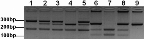 Agarose gel electrophoresis of the polymerase chain reaction based restriction fragment length polymorphism (PCR-RFLP) analysis of XPD and XRCC1. (Lanes 1–5) PstI digested fragments of exon 23 c.2298A>C XPD SNP. (Lane 1) AA genotype consisting of two fragments; 290 and 146 bp. (Lanes 2, 3, and 5) AC genotype consisting of four fragments; 290, 227, 146 and 63 bp. (Lane 4) CC genotype consisting of three fragments; 227, 146, and 63 bp. (Lanes 6–9) MspI digested fragments of exon 10 c.1316G>A XRCC1 SNP. (Lane 7) GG genotype consisting of two fragments; 148 and 94 bp. (Lanes 6 and 8) AG genotype consisting of three fragments; 242, 148, and 94 bp. (Lane 9) AA genotype consisting of an undigested fragment of 242 bp.