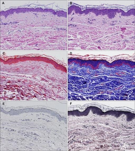 Figure 3:Treatment Of Striae Distensae With Nonablative