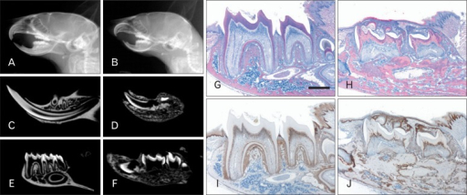 Disturbances in tooth formation and eruption failure of molars in Col1a1-cre:Catnb+/lox(ex3) mice. (A, B) In microradiography, general dimensions of craniofacial skeleton in MT mice are smaller than those in WT littermates. Particularly, mandible of MT is severely retarded and resulted in malocclusion. (C, D) In the mid-sagittal view, mandibular incisor is shorter and smaller than that of WT mice. (E, F) Molars of MT mice are impacted within mandible and root formation is impaired while those of WT mice are normally formed and erupted into the oral cavity. (G, H) In H&E-stained sagittal sections of the mandibles, bone deposition is remarkably increased and molars are not erupted in the MT mice. (I, J) In MT mice, β-catenin expression is upregulated in the odontoblasts and osteoblasts. MT, mutant; WT, wild type; H&E, hematoxylin and eosin. Scale bar=100 µm (G-J).