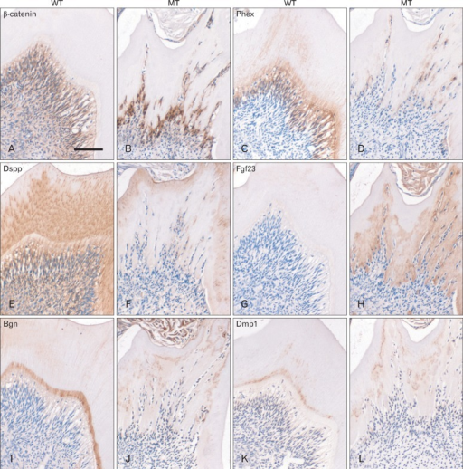 Mineralization defects in dentin of Col1a1-cre:Catnb+/lox(ex3) mice. (A, B) Immunohistochemistry reveal that β-catenin is localized in the Od and pulp cells of mandibular first molar of WT mice, which is restrictedly increased in the odontoblasts of MT mice. (C, D) Phex is localized in the odontoblasts of WT mice, but which is clearly reduced in the odontoblasts of MT mice. (E, F) In WT mice, Dspp is localized in the dentin as well as odontoblasts, but it is obviously decreased in the predentin and odontoblasts of MT mice. Dspp remains only in thin mineralized dentin of MT mice. (G, H) Localization of Fgf23 is not found in the dentin and odontoblasts of WT mice but which is clearly observed in the predentin of MT mice. (I-L) Bgn and Dmp1 are mainly localized in the predentin and a part of dentin in WT mice, which also decreased in the predentin of MT mice. Od, odontoblasts; WT, wild type; MT, mutant; Phex, phosphate regulating endopeptidase homologue on the X chromosome; Dspp, dentin sialophosphoprotein; Fgf23, fibroblast growth factor-23; Bgn, biglycan; Dmp1, dentin matrix protein-1. Scale bar=100 µm (A-L).