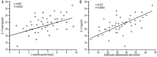 Correlation between plasma IL-17 levels in 45 active BD patients and biological parameters CRP and ESR using Pearson's correlation coefficient. Erythrocyte sedimentation rate (ESR: mm/h) and C-reactive protein (CRP: mg/L) expressed as median (range) values in active BD patients were significantly increased in active BD patients [ESR: 35.76 (2–90); CRP: 107.5 (3–260)] compared to healthy controls [ESR: 6 (2–17); CRP: 3.2 (3–9); P<0.0001]. (A): Positive correlation between plasma IL-17A level and CRP (r=0.687; P=0.0021) in active Behçet's disease (BD). (B): Significant positive correlation was observed between plasma IL-17A level and ESR (r=0.597; P=0.003).