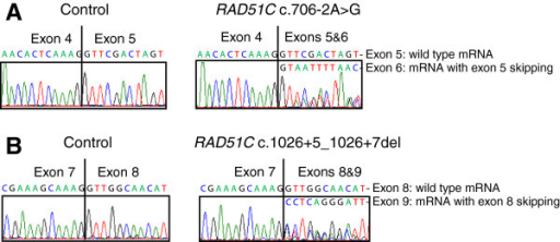 mRNA analysis for RAD51C splicing mutations showing exon skipping. (A) Electropherograms of Sanger sequencing analysis for a control sample with wild type RAD51C mRNA only (left) and for RAD51C c.706-2A > G mutation with two types of mRNA: wild type mRNA and mRNA with exon 5 skipping (right). (B) Electropherograms of Sanger sequencing analysis for a control sample with wild type RAD51C mRNA only (left) and for RAD51C c.1026 + 5_1026 + 7del mutation with two types of mRNA: wild type mRNA and mRNA with exon 8 skipping (right).