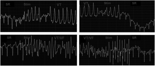 VT induced and then terminated by the S1S2 pacing program (upper graphs). VT/VF induced and then terminated by the S1S2 pacing program (lower graphs). SR, sinus rhythm; VT, ventricular tachycardia; VF, ventricular fibrillation; S1S2, regular stimuli with an added extra stimulus.