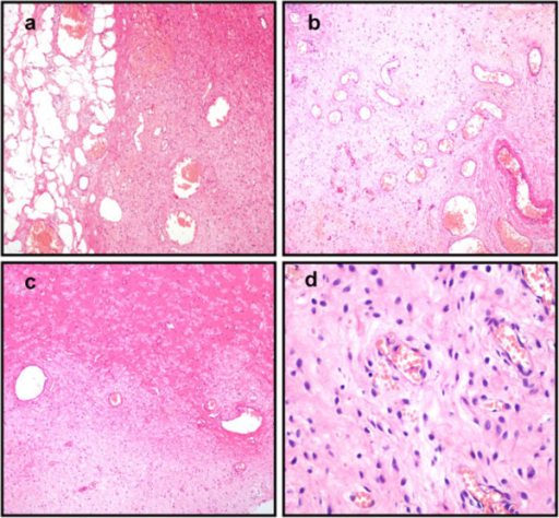 Histopathological examination of tumor post-operation. (a) The tumor is well demarcated from the surrounding fat tissues. (b) Abundant thin-walled blood vessels can be seen in the tumor. (c) The stroma of the tumor is hyalinized or edematous, and appears hypocellular in some areas. (d) The tumor is composed of bland, plump, spindle-shaped or oval cells that are frequently aggregated around thin-walled blood vessels (H&E: 100 x).