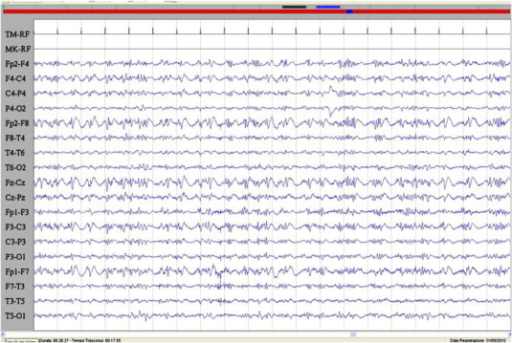 Ictal EEG during the epileptic seizure characterized by acute visual hallucination with fear and speech arrest. A burst of spikes and spike–waves in the frontal regions bilaterally is evident. Sensitivity: 7 μV/mm; TC: 0.1 s; HF: 50.0 Hz.