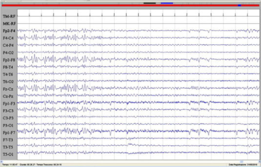 The image showed the abrupt remission of the epileptic activity corresponding to the discontinuation of the hallucinatory phenomenon and the slowing of the EEG activity. Sensitivity: 7 μV/mm; TC: 0.1 s; HF: 50.0 Hz.