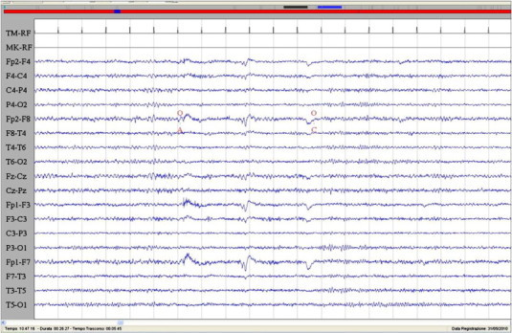 Interictal EEG characterized by normal rhythms with preservation of voltage suppression with eye opening. Sensitivity: 7 μV/mm; TC: 0.1 s; HF: 50.0 Hz.