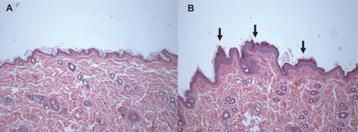 Histopathologic changes in the skin after treatment with zinc oxide nanoparticles at a dose of 1,000 mg/kg for 90 days. Skin sections were stained with hematoxylin and eosin (100×). (A) Control group and (B) 1,000 mg/kg treatment group.Note: Arrows in (B) represent hyperkeratosis.