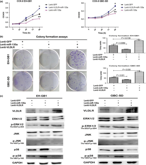 Reintroduction of very low density lipoprotein receptor (VLDLR) abrogated microRNA-135a (miR-135a)-induced inhibition of proliferation in gallbladder cancer (GBC) cells. (a,b) Cell counting (CCK-8) and colony formation assays of GBC-SD and EH-GB1 cells stably expressing miR-135a or lenti-GFP were infected with lenti-VLDLR or corresponding lenti-GFP. *P < 0.05 (Lenti-GFP vs Lenti-miR-135a); **P < 0.05 (Lenti-GFP vs Lenti-VLDR+miR-135a). (c) Protein levels of VLDLR, ERK(1/2), SAPK/JNK, and p38 and their phosphorylation (p−) levels were detected by Western blot assays after GBC-SD and EH-GB1 cells stably expressing miR-135a or lenti-GFP were infected with lenti-VLDLR or corresponding lenti-GFP.