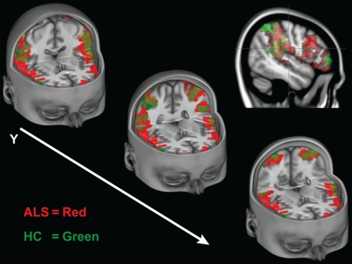 Experiment 1 Conjunction Analysis of Co-activated Voxels During Execution and Observation of Actions.Cut-out sections of the inferior frontal gyri and inferior parietal lobes. Activity maps indicate only the voxels that were active during both the action execution and observation conditions during Experiment 1. The ALS group's intersecting voxels are shown in red, the HC group is shown is green. Colors are blended in overlapping regions.)