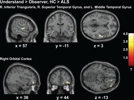 Experiment 2 Action Understand > Observe, HC > ALS.Greater activity in the HC group compared to patients with ALS throughout the right prefrontal cortex and temporal regions shown for the understand>observe contrast from Experiment 2.)