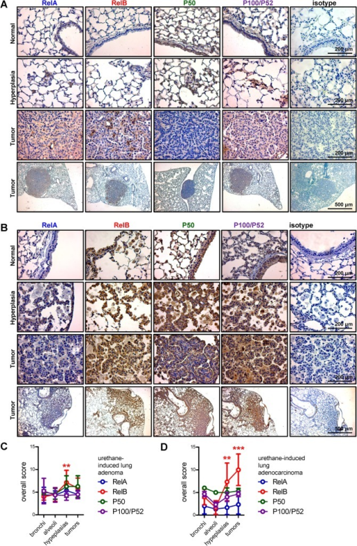 Immunohistochemical detection of NF-κB in mouse models of NSCLC.NF-κB subunit expression was assessed by immunohistochemistry in urethane-induced mouse lung adenomas (A and C) and mutant KRAS-induced lung adenocarcinomas (B and D). (A, B) Representative images. (C, D) Overall scoring of NF-κB subunit expression levels from four mice per group. Data presented as mean ± SD. ** and ***: P < 0.01, and P < 0.001 for the indicated color-coded subunit compared with normal bronchial and alveolar epithelium by two-way ANOVA followed by Bonferroni post-tests. Non-significant comparisons are not indicated.