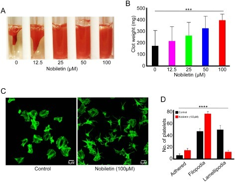 Integrin αIIbβ3-mediated outside-in signalling is inhibited by nobiletin. The effect of various concentrations of nobiletin (12.5, 25, 50 and 100 μM) on clot retraction was analysed in vitro using human PRP (A and B). (A) Representative image of clot retraction at 2 h in the presence or absence of different concentrations of nobiletin. Data in (B) represent mean ± SD (n = 4) of clot weights measured at 2 h. Washed human platelets were allowed to spread for 45 min in the presence and absence of 100 μM nobiletin on 100 μg·mL−1 fibrinogen-coated cover glasses and stained with Alexa fluor 488 labelled phalloidin prior to analysis using a Nikon A1-R-confocal microscope. The images shown in (C) are representative of multiple images acquired from four separate experiments. The images were analysed by ImageJ and the number of platelets found at different states of platelet spreading were calculated (D). The P-values were calculated using parametric repeated measures anova (***P = <0.001 and ****P = <0.0001).