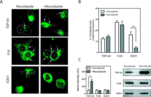 Microtubule destabilization prevents SOD1 inclusions but not TDP-43 and FUS inclusions.NSC-34 cells were transiently transfected with mutant TDP-43, FUS, or SOD1-GFP and after 24 hours incubated with or without 33 μM nocodazole. (A) Confocal images of cells expressing GFP fusion proteins in the presence or absence of nocodazole. Dotted white line represents cell outline, solid white line represents nuclear outline obtained from transmission image (denoted N), white arrows indicate inclusions. (B) Quantification of the proportion of cells with inclusions in transfected cells. At least 6 fields of view from each timepoint were counted (minimum 30 cells per field) and scored. Experiments were performed 3 times and bar charts represent mean and standard deviation. ** indicates p < 0.01 (C) After treatment with nocodazole cells were lysed and lysates were used in filter trap assays. Trapped material represents aggregates. Western blotting of resulting filter trap assay and quantification using imageJ. Experiments were performed 3 times and bar charts represent mean and standard deviation. **indicates p < 0.01.