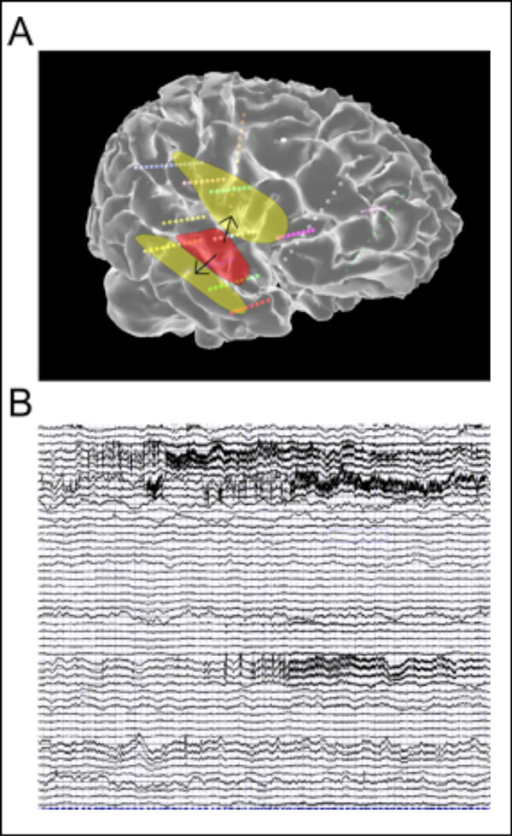 A. Example of the EZ (red) and the calculated PZ (yellow) displayed on the patient cortical surface, along with sEEG electrodes (small spheres). B. Corresponding simulated time series.