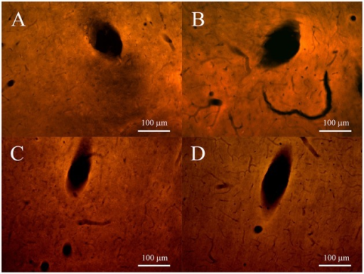 Fluorescence microscopy images of tracks for non-encapsulated (left panels) and pHEMA-encapsulated (right panels) microspheres, 2 and 4 weeks after the implant. (A,B) show the ED1-positive cells (red) at 20 × at 2 weeks; (C,D) show the ED1-positive cells (red) at 20 × at 4 weeks.
