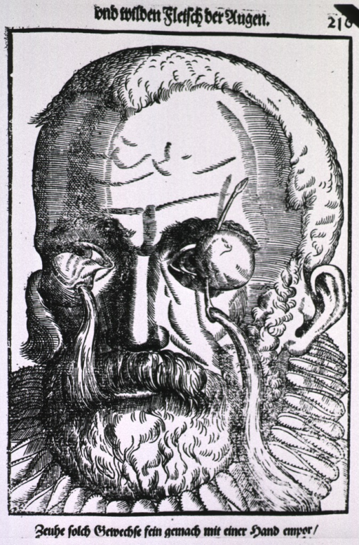 <p>Close-up of the head of a man with globular growths of flesh attached to the conjunctiva; they have been pierced with a needle, and thread (a seton) has been passed through the openings.</p>