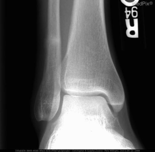 AP view of right ankle demonstrates a subtle sclerotic line that runs perpendicular to the long axis of the distal fibula, just superior to lateral malleolous.