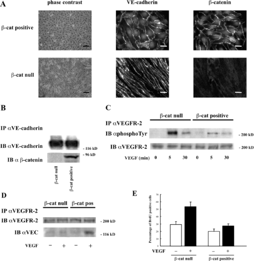 The absence of β-catenin enhances VEGF-induced phosphorylation of VEGFR-2 and cell proliferation. Endothelial cells derived from β-catenin– embryos (β-cat ) did not express β-catenin in comparison with cells obtained from β-catenin–positive (β-cat positive) littermate animals. (A) By immunofluorescence analysis, VE-cadherin was expressed at a comparable level and was concentrated at cell–cell contacts in both β-catenin– and –positive cells. Cell junctions were negative for β-catenin in  cells. Bars: (phase contrast) 100 μm; (VE-cadherin and β-catenin) 20 μm. (B) Immunoprecipitation (IP) of cell extracts with VE-cadherin antibodies followed by Western blot (IB) with anti–VE-cadherin (αVE-cadherin) or β-catenin (αβ-catenin) antibodies showed absence of the last protein in the complex. (C) The absence of β-catenin enhanced the extent and duration of VEGFR-2 phosphorylation in response to VEGF (80 ng/ml). IP with anti–VEGFR-2 and Western blot with antiphosphotyrosine and anti–VEGFR-2 antibodies. (D) VE-cadherin could be coimmunoprecipitated with VEGFR-2 only in β-positive cells after VEGF (80 ng/ml for 5 min). IP with anti–VEGFR-2 and Western blot with anti–VEGFR-2 and anti–VE-cadherin antibodies. (E) Confluent β-cat– endothelial cells incorporated BrdU 2–2.5-fold more than β-cat–positive cells in response to stimulation with VEGF (80 ng/ml for 24 h). Incorporation of BrdU was measured and calculated (mean of three independent experiments ± SD) as in Fig. 1. Two independent pairs of both β-positive and β- endothelial cells obtained from littermate embryos of different mothers have been tested with comparable results.