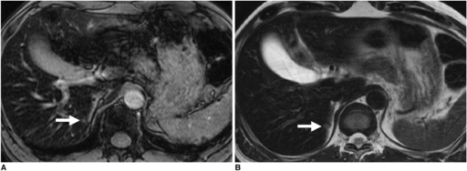 57-year-old man with surgically confirmed 0.4-cm liver metastasis from rectal cancer.A. Axial ferucarbotran-enhanced breath-hold T2*-weighted gradient echo imaging (180/12) shows irregular high signal intensity lesion (arrow) at medial margin of right hepatic lobe, which was missed by one observer and was assigned confidence level of 2 by other observer during image interpretation.B. Axial ferucarbotran-enhanced respiratory-triggered T2-weighted turbo spin echo imaging (4200/76) clearly shows small round hyperintense mass (arrow) at same location as in A. This was assigned score of 4 by both observers.
