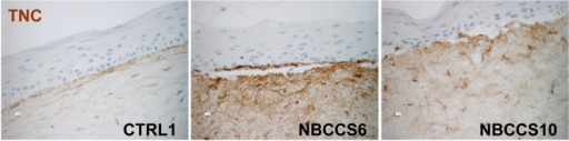 NBCCS fibroblasts in organotypic cultures over-express TNC.Organotypic skin cultures with control keratinocytes and the indicated fibroblasts were developed and 5 µm paraffin sections were immunolabelled using anti-human TNC antibody. Note the barely detectable labelling of TNC in control dermis and its increase in both NBCCS fibroblast strains tested (6 and 10).