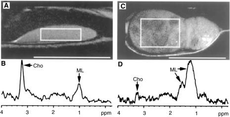 (A,C) Proton density-weighted MR images of two representative xenografts two (A) and three (C) weeks after cell inoculation, respectively. Scale bars=10 mm. (B) 1H MRS spectrum from tumour in A. The selected VOI is indicated by a rectangle. Cho-containing compounds dominate the spectrum. ML signals are also seen. TE=20 ms, 128 averages. (D) 1H MRS spectrum from large tumour seen in C. The VOI (rectangle in C) includes tumour tissue with variable signal intensity. There is a weak Cho signal while MLs dominate. TE=20 ms, 128 averages. B and D are not shown to scale.