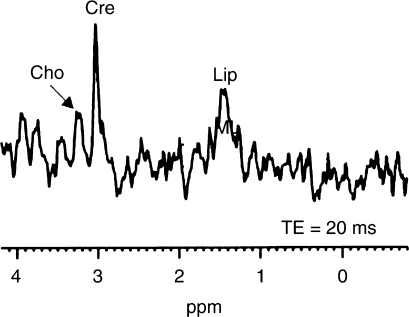 Control spectra from skeletal muscle in a nude rat. The resonance of creatine/phosphocreatine (Cre) at 3.0 ppm was not detectable in neuroblastomas. Cho=choline, Lip=lipids. TE=20 ms, 64 averages.