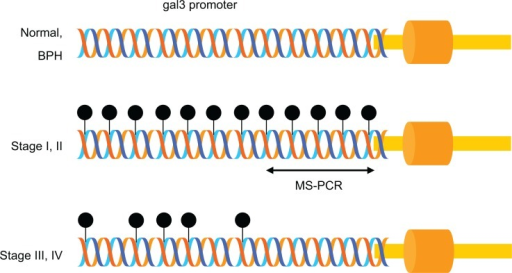 Schematic representation of MS-PCR. In normal and BPH prostate tissues, the gal3 promoter is unmethylated, whereas in stage I and II, it is methylated heavily. However, gal3 promoter is lightly methylated in stage III and IV. Stage-specific cytosine methylation of the gal3 promoter enabled the development of MS-PCR for the detection of stage I and II PCa.