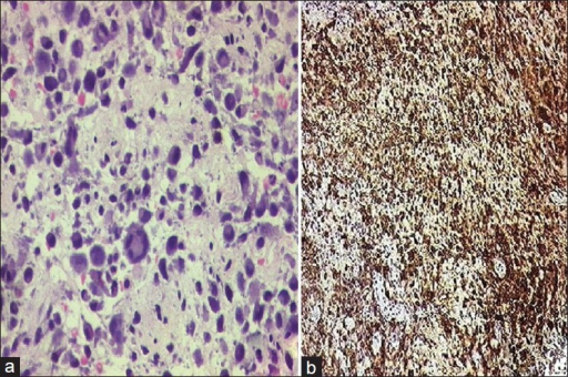 (a) Biopsy showing variable histiocytes with mononucleate, binucleate and multinucleate cells amidst lymphocytes and polymorphs (H and E, ×400); (b) Immunostaining with S100 showed diffuse positivity in the atypical histicytes (IHC, ×100)