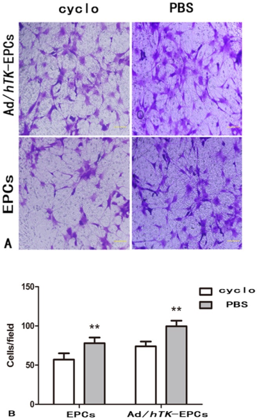 Inhibition of αvβ3 expression and the migration ability of EPCs.The inhibition of αvβ3 expression can lower the migration ability of EPCs. A: Representative macroscopic photographs of Ad/hTK-transduced EPCs and EPCs after administration inhibitor cyclo to block the pathway of αvβ3 for 24 h, respectively. Upper 2 photos show Ad/hTK-transduced EPCs, lower 2 photos, EPCs (×100 magnification). B: Quantitative analysis of the cells migration, *P<0.05 between the Ad/hTK-transduced EPCs and non-transduced EPCs with the cyclo for 24 h.