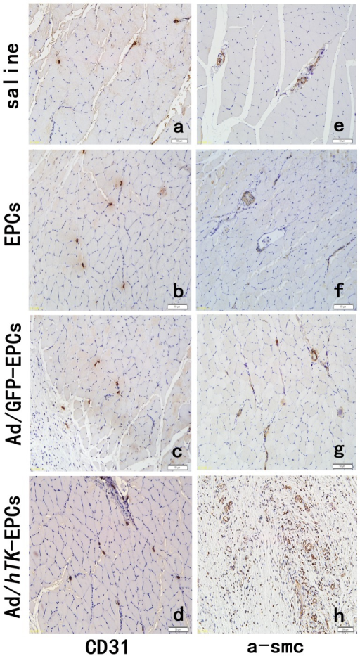 Immunohistochemical identification of vascular endothelial cells.Immunohistochemical identification of vascular endothelial cells using antibodies against CD31+ (a, b, c, d) and myofibers by antibodies anti-alpha smooth muscle actin (e, f, g, h). Skeletal muscle sections were harvested from hindlimbs after surgery 21 days. Representative pictures showing higher capillary density and mature vessels injected with Ad/hTK-transduced EPCs (d, h) compared with Ad/GFP-transduced EPCs (c, g), EPCs (b and f) and 0.9% saline (a, e).