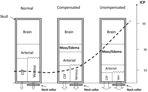The relationship between intracranial volumes and intracranial pressures (ICP). The figure shows the different compartments within the skull, and what happens to them and the ICP (broken line) when a new pathological compartment appears. As volume increases inside the skull compensation may occur up to a certain limit by decreasing cerebrospinal fluid (CSF) and venous blood inside it. A neck collar may obstruct venous outflow, hampering this mechanism and causing a move to the right on the ICP curve. How much ICP will increase will depend on where on the pressure curve the patient is positioned.
