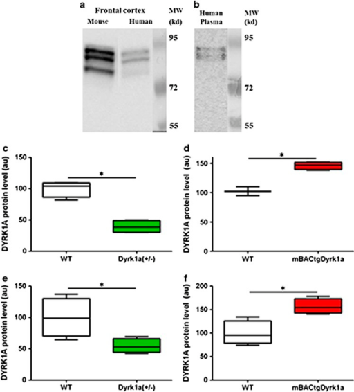 DYRK1A expression in plasma as detected by immunoblot. Western blotting of (a) DYRK1A expression in mouse and human frontal cortex; and (b) DYRK1A expression in human plasma. Slot blot analysis of relative DYRK1A protein levels in: (c) cortex of Dyrk1a(+/−) mice (120-day-old males) in light grey versus wild-type mice (WT); (d) cortex of mBACtgDyrk1a mice (120-day-old males) in dark grey versus WT; (e) plasma of Dyrk1a(+/−) mice; and (f) plasma of mBACtgDyrk1a mice. Box plots indicate median with min to max, *P<0.05; a.u., arbitrary unit.