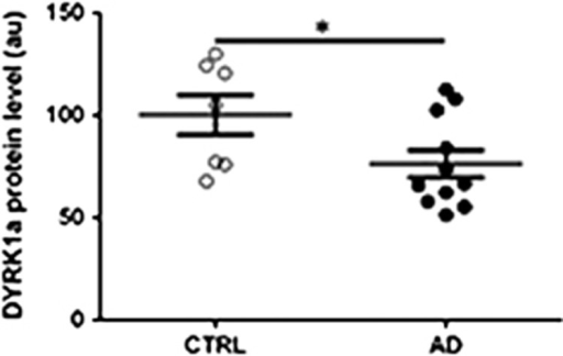 Relative DYRK1A protein levels in LCLs from control (CTRL) and Alzheimer's disease (AD) patients. White dots: controls; black dots, AD patients. Graph bars indicate mean±s.e.m.; *P<0.05.