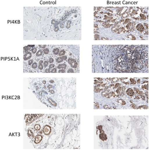 Expression of phosphoinositide signalling proteins in normal breast tissue and in ductal carcinoma. Images were obtained by immunohistochemical staining of paraffin-embedded tissue samples using isoform-specific antibodies directed against the protein products of PI4KB, PIP5K1A, PIK3C2B and AKT3. Antibody binding appears as brown/black staining on a background of blue hematoxylin counterstain. All images are from the Human Protein Atlas.